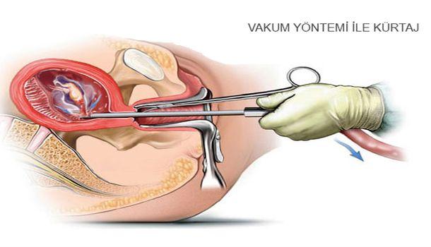 vakum yöntemi ile kürtaj